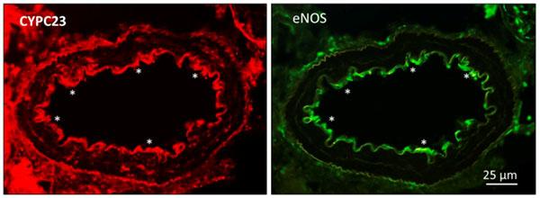 disfunción endotelial en diabetes de mecanismos a dianas terapéuticas